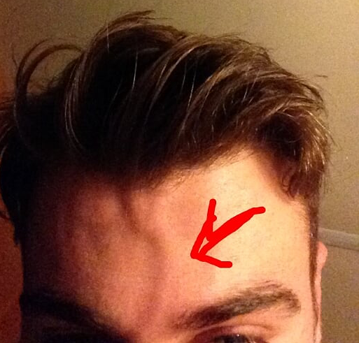 Bulging Vein in the Forehead